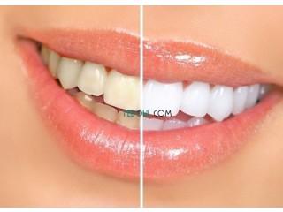 شرائح تبييض الأسنان 3دي الذي ينصح به الاحياء