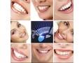 appareil-de-blanchiment-des-dents-small-2
