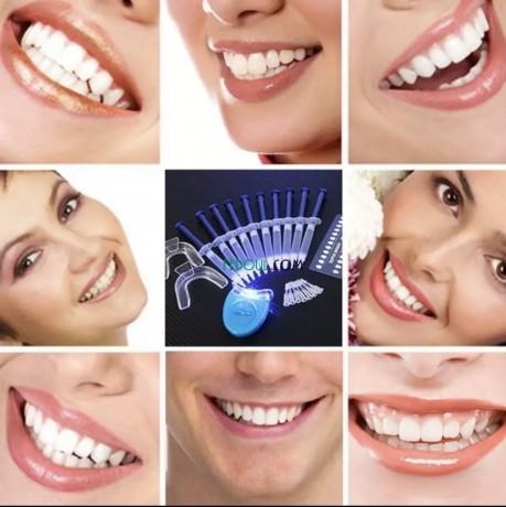 appareil-de-blanchiment-des-dents-big-2